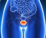 Медикаментозное лечение гиперактивного мочевого пузыря