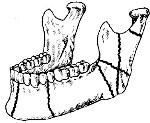 Переломы нижней челюсти - Хирургическая стоматология от А до Я