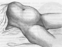 Разрыв матки классификация 11