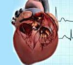 Патогенез легочного сердца