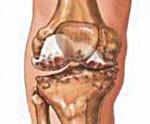 Остеохондропатия головки плюсневой кости стопы