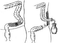 Операция гартмана на толстой кишке при раке