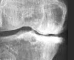Что такое остеосклероз костей и суставов: лечение позвочнинка