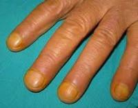Синдром желтого ногтя