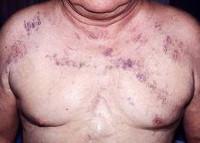Синдром верхней полой вены