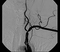 Окклюзия подключичной артерии