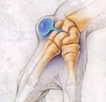 Синовиальная киста гигрома ноги лечение симптомы причины