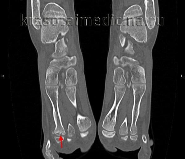 КТ стопы. Болезнь Келера-2 (остеохондропатия головки 3-й плюсневой кости: снижение высоты головки вследствие остеонекроза, с наличием свободного костно-хрящевого фрагмента).