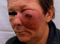 Рак полости носа и околоносовых пазух