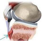 Болезнь Осгуда Шлаттера коленного сустава: лечение у подростков, симптомы, что это такое