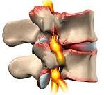 Спондилез грудного отдела позвоночника симптомы и лечение