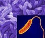 Алгидная форма холеры