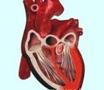 Сердечная астма и бронхиальная астма отличительные признаки