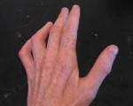Изображение - Невропатия локтевого сустава 387b1923ed60caf86e3b2ed16a14022a