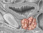 Хронический простатит у мужчин: симптомы и лечение