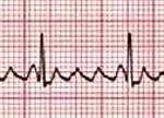 Лечение трепетания предсердий - методы Лечение трепетания предсердий сердца у мужчин, женщин и детей.