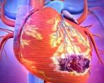 Безболевой инфаркт миокарда