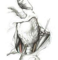 Процедура Удаление щитовидной железы