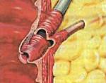 Дисфункция сфинктера одди по билиарному типу симптомы