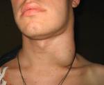 Увеличены лимфоузлы на шее причины сзади