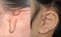 Атрезия слухового прохода