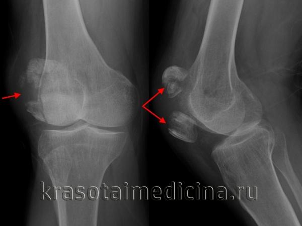 Рентгенография коленного сустава. Перелом надколенника с выраженным диастазом отломков.
