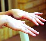 Юношеская миоклоническая эпилепсия прогноз