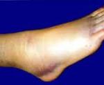 Связки голеностопного сустава: повреждение. Связки голеностопного сустава повреждены: симптомы, лечение, последствия