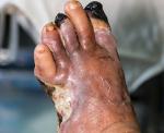 Гангрена нижних конечностей (ног) при сахарном диабете