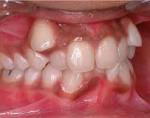 Клинические проявления нарушения формы размера и количества зубов