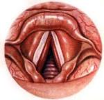 Круп кашель симптомы