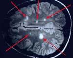 Рассеянный склероз причины возникновения лечение