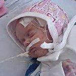 Асфиксия новорожденных и гипоксия новорожденного – в чем разница и каковы последствия?