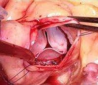 Процедура Протезирование аортального клапана