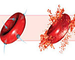 Пароксизмальная ночная гемоглобинурия - причины, симптомы, диагностика и лечение