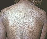 Ихтиоз - причины, симптомы, диагностика и лечение