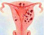 Аденомиоз молочных желез