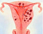 Диффузно очаговый аденомиоз матки