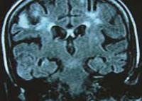 НейроСПИД