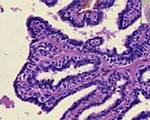 Папиллома протока молочной железы лечение