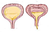 Нейрогенный мочевой пузырь у детей
