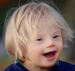 Почему рождаются дети с синдромом Дауна и кто виноват в этой патологии