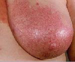 Мастит у кормящей матери: симптомы, лечение, причины, сохранять ли грудное вскармливание, профилактика