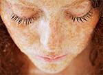 Гиперпигментация Пигментные пятна на лице как решить проблему