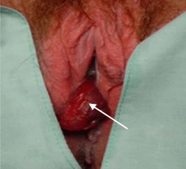 Цервикальный полип на ножке, выступающий из влагалища у пациентки на 21 неделе беременности