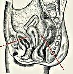 Перитонит у взрослых: причины, лечение, осложнения и прогноз