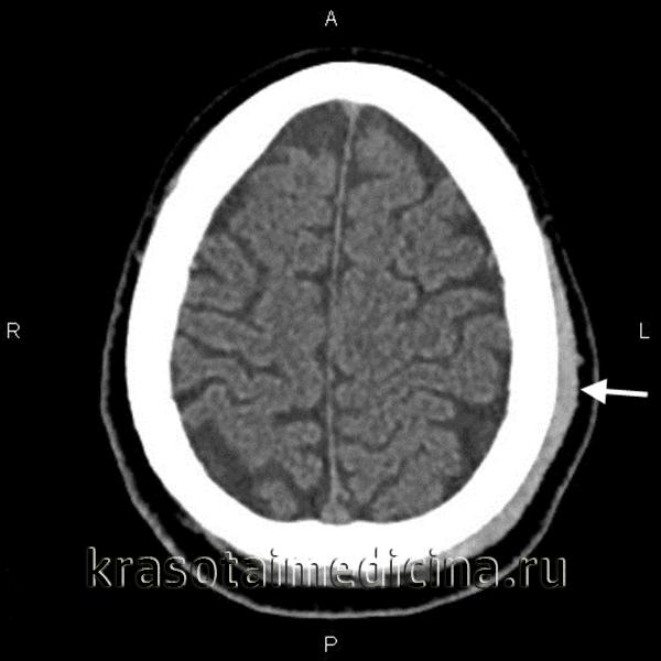 КТ головного мозга. Гематома периферических мягких тканей левой теменной области