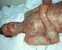 Эпидермальный некролиз синдром лайелла 23