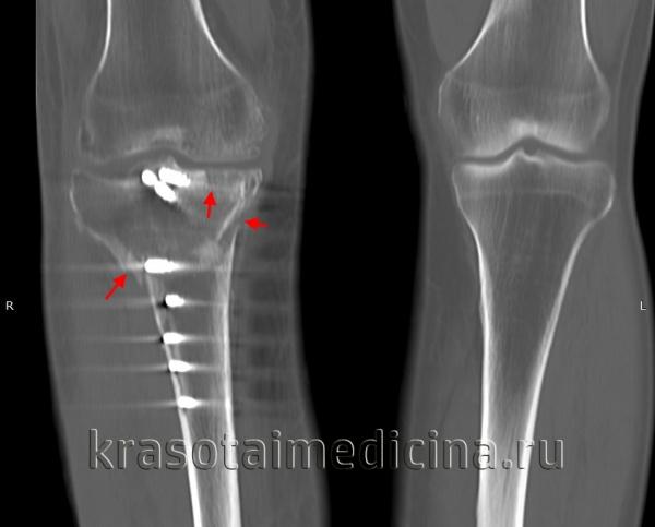 КТ коленных суставов. Внутрисуставной перелом латерального и медиального мыщелков большеберцовой кости