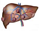 Лечение метостаз и рака печени
